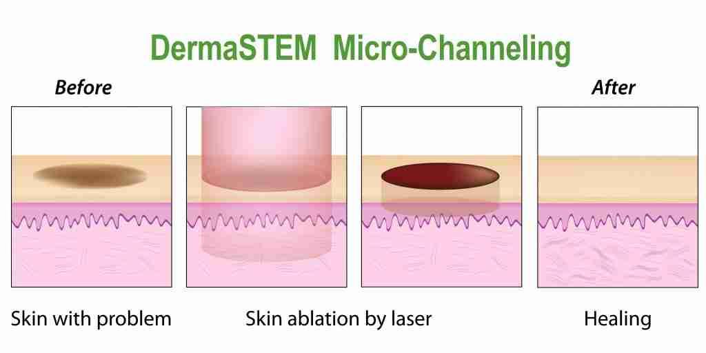 DermaSTEM-diagram