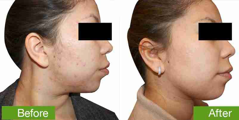 before-and-after-acne treatment
