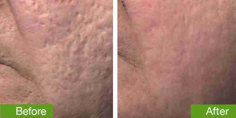before-and-after-DermaSTEM-microchanneling
