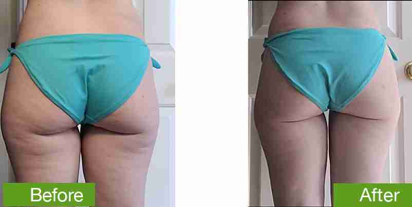 before-and-after-cellulite-reduction-1