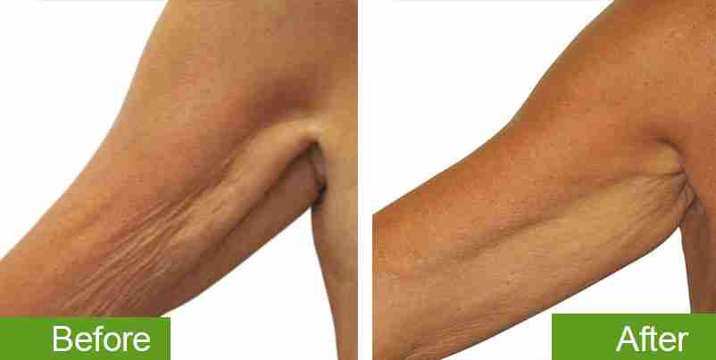 before-and-after_skin-tightening-2