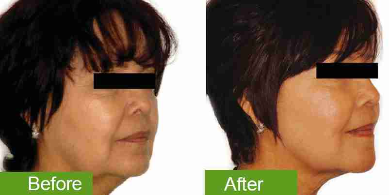 before-and-after_skin-tightening